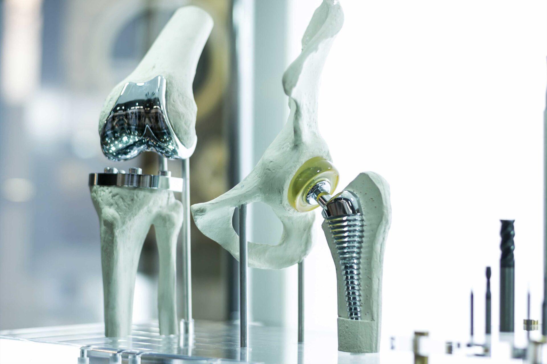 squelette prothèse médicale allemande